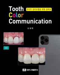 Tooth Color Communication : 전치부 심미보철을 위한 콜라보